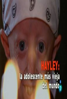 Hayley, World's Oldest Teenager on-line gratuito