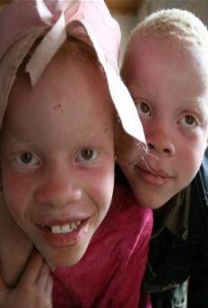 Ver película La caza de albinos en África