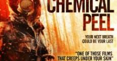 Película Chemical Peel
