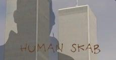 Human Skab