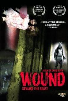 Wound online